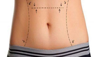 Prof. Dr. Cengiz AÇIKEL Liposuction
