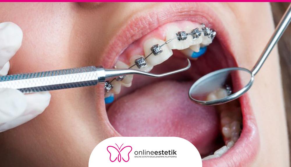 Diş Tedavisi Fiyatları
