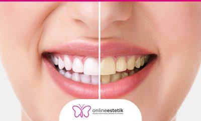 diş beyazlatma tedavileri