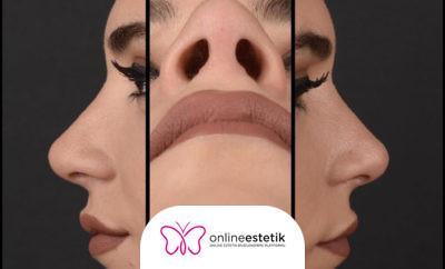 3D Mask Burun Estetiği