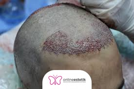 FUT, (Follicular Unit Transplantation) Saç Ekim Yöntemi