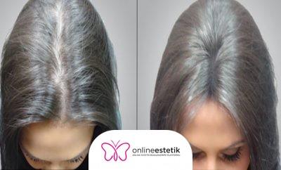 Kadınlarda Saç Ekim'i