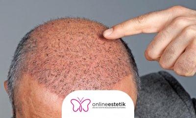 Milano Klinik Saç Ekimi