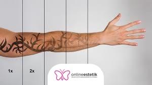 Dövme Silme Hakkında Sıkça Sorulan Sorular?