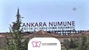 Ankara Numune Hastanesi Estetik Operasyonları 2