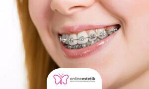 Devlet Hastanelerinde Diş Teli Takılır mı?