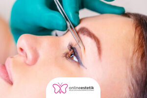 FBM Estetik Klinik Göz Kapağı Estetiği