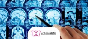 Beyin ve Sinir Cerrahi