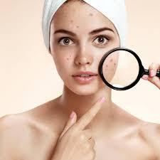 Cildiye (Dermatoloji)