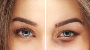 Okmeydanı Eğitim Araştırma Hastanesi Göz Kapağı Ameliyatı