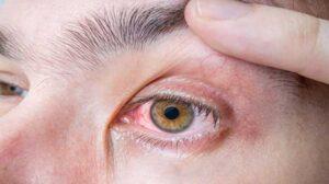 Göz Hastalıkları Çeşitleri Nelerdir